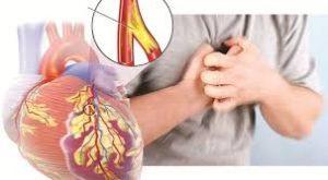 Bệnh nhân bệnh tim