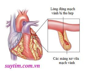Động mạch bị i thu hẹp