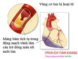 Hoại tử cơ tim