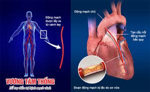 bắc cầu động mạch vành