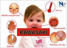 Bệnh Kawasaki