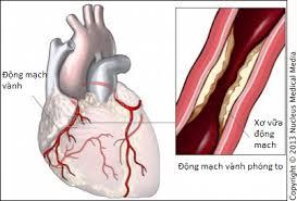 Bệnh lý mạch vành