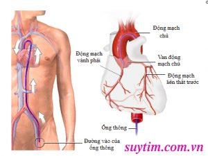 động mạch vành.