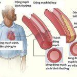 Hình ảnh động mạch vành
