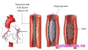 ống đỡ động mạch