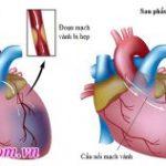 Phẫu thuật bắc cầu động mạch vành