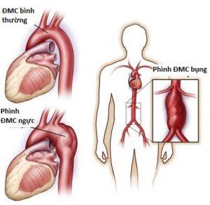 Phình động mạch chủ