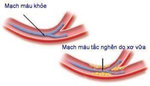 Tắc nghẽn động mạch