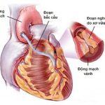 bắc cầu mạch vành