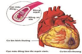 Nguy cơ hoại tử cơ tim cấp tính.