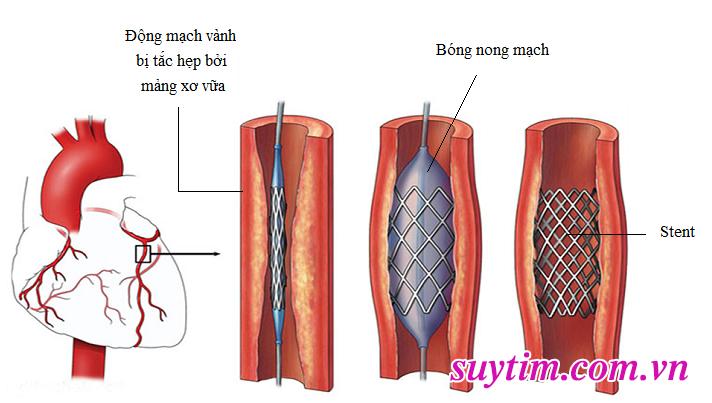 nong động mạch vành