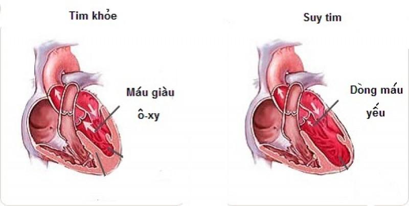 biến chứng xơ vữa động mạch