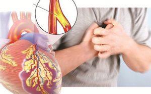 Bệnh nhân tim mạch