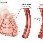 Tắc nghẽn động mạch vành